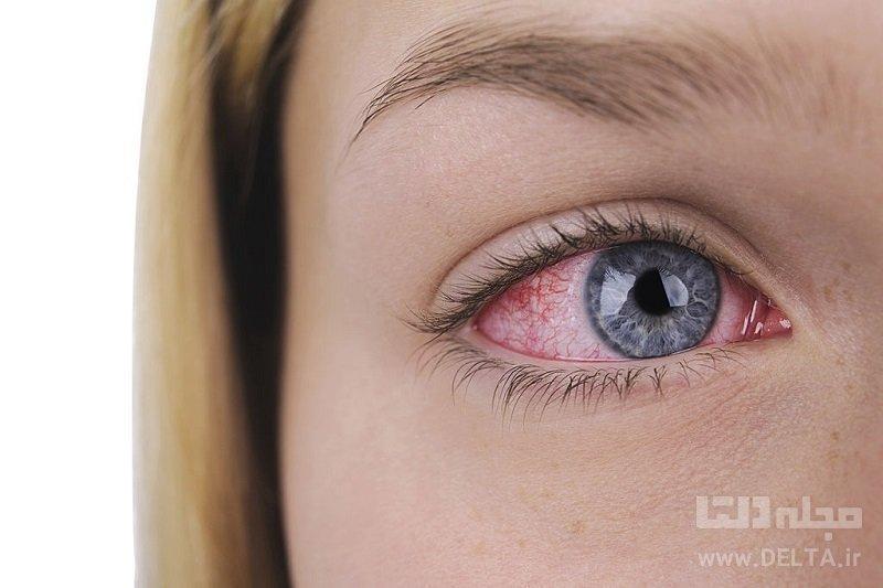 عارضه چشم صورتی، نشانه ویروس کرونا